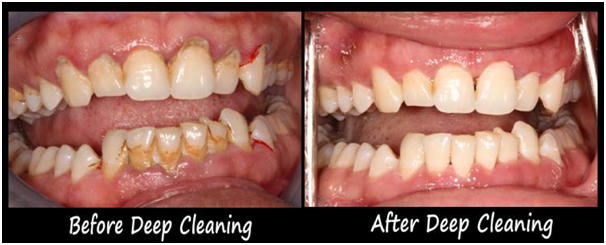 Scaling cleaning of the teeth