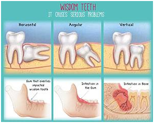 Wisdom tooth removal or extraction